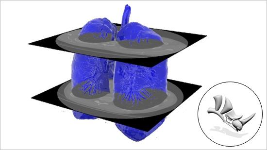 Röntgen blir till CAD med Rhino3DMedical